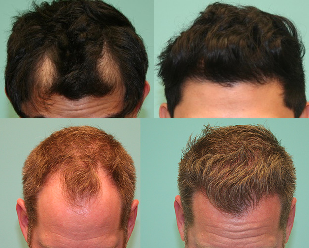 Natural Hairline Restoration