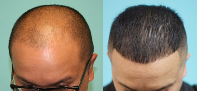 Hair Loss And Hair Thinning Treatments Propecia Minoxidil Rogaine Tricomin